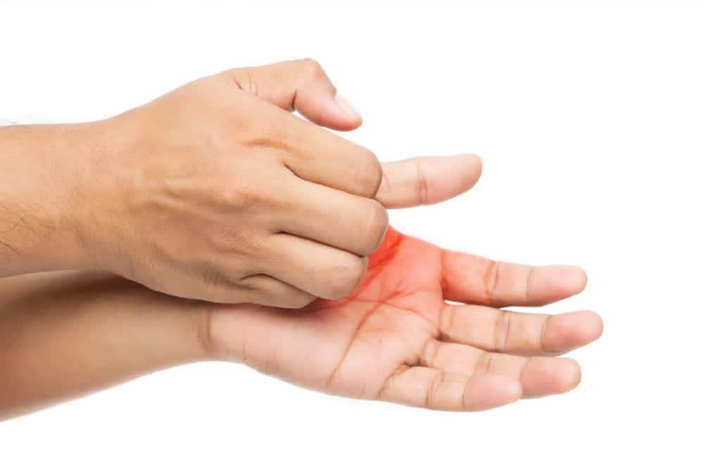 A person is scratching his itchy hands